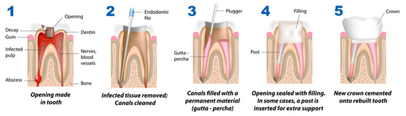 Root-Canal-Dentist-Geraldton
